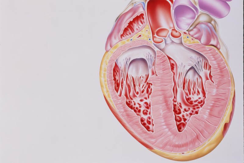 ischemic-heart-disease